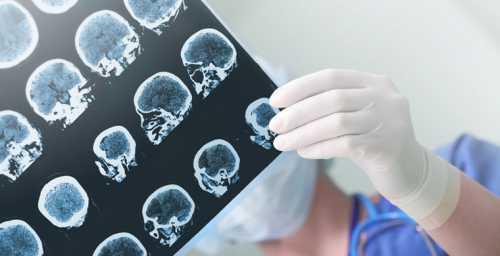 ученые начали испытания по доставке лекарств с помощью наночастиц для лечения остеосаркомы